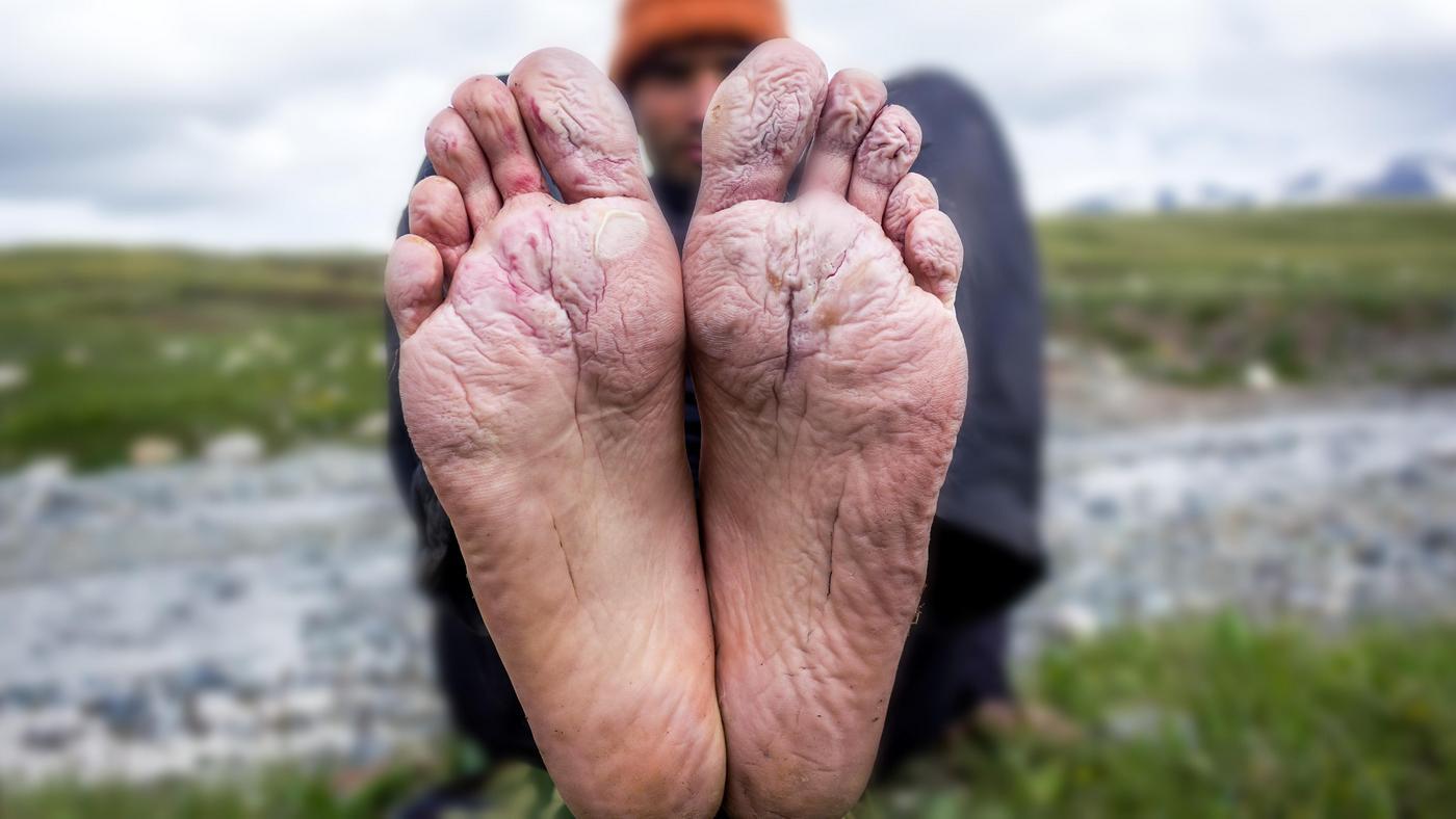 Otarcia, pęcherze, odciski – jak dbać o stopy podczas marszu?